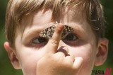 A Down Syndrom Boy And Butterfly