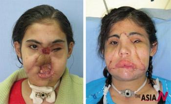 터키 세 번째 안면이식 수술 성공